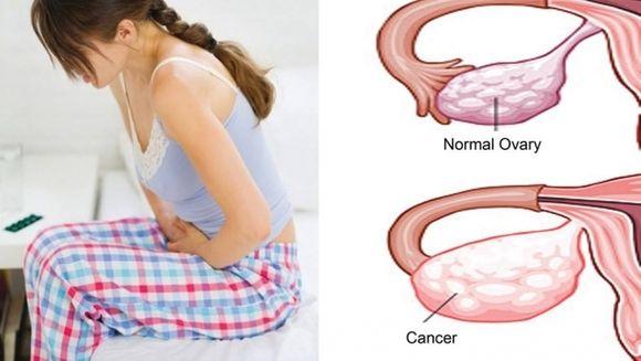 "Cancer ovarian: Simptomele ""asasinului tacut""! Daca ai si tu asta, mergi de urgenta la ginecolog"