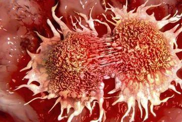 Descoperirea surprinzatoare a unui barbat: cancerul se poate vindeca in doar 3 minute! Iata cum