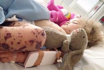 Au crezut ca fetita lor face o raceala, insa cand i s-a umplut pielea de pete vinete au intrat in panica si au fugit cu ea la medic! E cutremurator ce diagnostic i-au pus medicii dupa ce starea ei s-a agravat