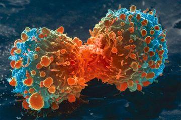 Alimentul care distruge celulele canceroase! Se gaseste in orice magazin si face minuni