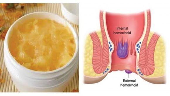 Simptomele dureroase ale hemoroizilor. Cum sa scapi de probleme cu un tratament naturist miraculos
