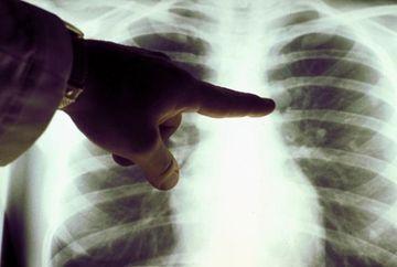 Simptomele periculoase ale celui mai mortal tip de cancer: cancerul pulmonar. Cum iti dai seama daca ai boala