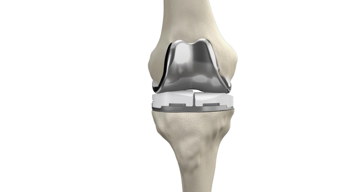 cu ce se trateaza gonartroza medicamente pentru inflamarea articulațiilor piciorului