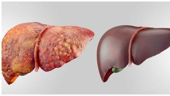 Asta e boala silentioasa de ficat care duce la cancer. Asa se depisteaza la timp
