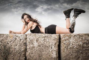 O tanara fara un picior s-a calificat in finala Miss Italia 2018!