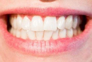 Cum iti albesti RAPID dintii. Un tratament la indemana oricui! Ai ingredientul MINUNE chiar acasa