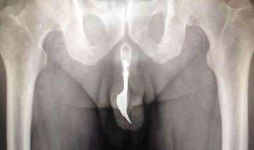 """S-a dus la doctor plangandu-se de dureri! Medicii AU INCREMENIT cand au vazut radiografia. """"Asa ceva este imposibil"""""""