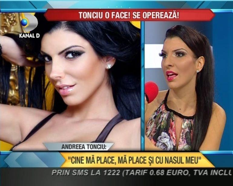 Andreea Tonciu se da pe mana bisturiului: este pe primul plan pentru mine pentru ca m-am nascut cu o boala VIDEO