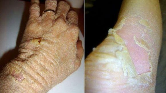 Horror: II CADE PIELEA din cauza unei boli RARE! Pierde 12 KILOGRAME de piele pe an FOTO SOCANT