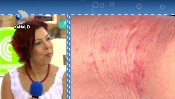 Radiatiile ultraviolete dauneaza sanatatii! Tu cum iti protejezi pielea la plaja? VIDEO