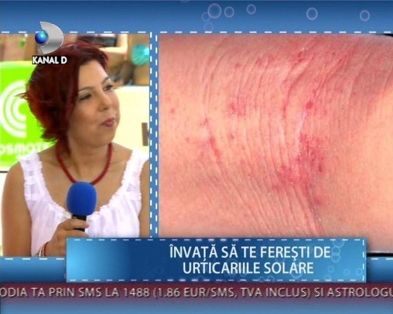 Radiatiile ultraviolete iti dauneaza sanatatii. Tu cum iti protejezi pielea la plaja? VIDEO