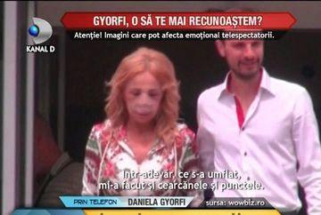 Daniela Gyorfi, cu chipul DESFIGURAT. Cantareata s-a dat din nou pe mana chirurgului VIDEO
