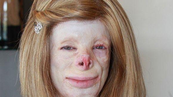 COSMARUL CEL MAI CRUNT al unei adolescente! Din cauza unui incendiu a ramas fara nas, par, degete si un picior
