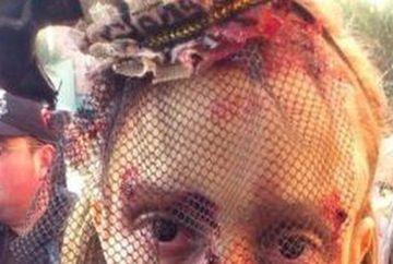 INFRICOSATOR: Parintii AU AJUNS IN SPITAL cand au vazut cum arata fiica lor! AI CURAJ SA VEZI cum se termina poza? FOTO