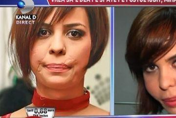 """Andreea Popescu vrea sa se opereze din nou la fata: """"Sunt umflata"""""""