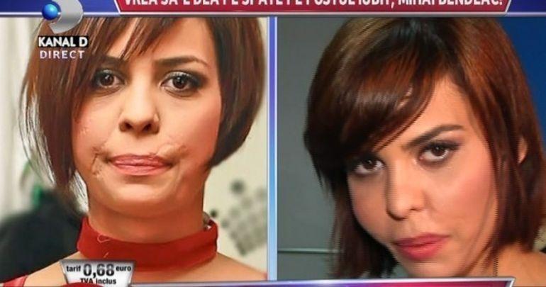 Andreea Popescu vrea sa se opereze din nou la fata: Sunt umflata