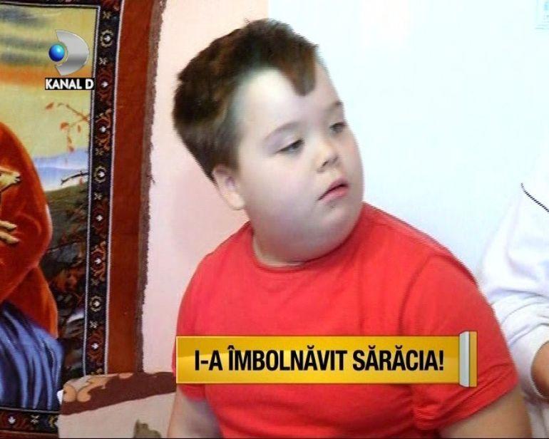 OBEZITATEA UCIDE! Familii intregi de romani sunt atacate de acesta boala VIDEO