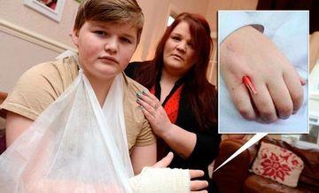 SOCANT! Medicii l-au trimis de doua ori acasa, desi avea un creion infipt in mana si isi putea pierde bratul