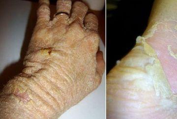 Femeia careia II CADE PIELEA din cauza unei boli RARE! Pierde 12 KILOGRAME de piele pe an FOTO SOCANT