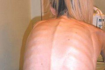 """Aveam oasele precum lamele de ras!"" Povestea SOCANTA a unei anorexice care ajunsese sa aiba 19 kilograme FOTO"