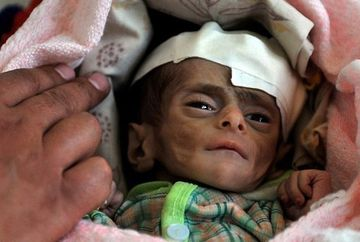 IMAGINILE GROAZEI! Te plangi ca nu ai tot ce iti trebuie? Copiii mor de foame in Yemen! FOTO SOCANT