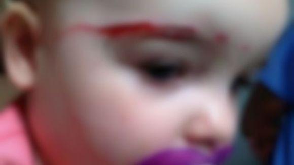 SOCANT: o fetita de doar un an si cinci luni a fost MUTILATA de pisica vecinilor FOTO