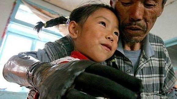 POVESTE TULBURATOARE - De 8 ani a avut nevoie pentru a-si construi singur propriile maini bionice! FOTO