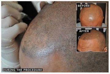 Cea mai noua metoda pentru a scapa de chelie: tatuajul de par. Uite ce rezultate are! VIDEO