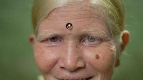Sunt indieni, dar in tara lor se crede ca sunt straini. Cea mai mare familie de albinosi din lume! FOTO