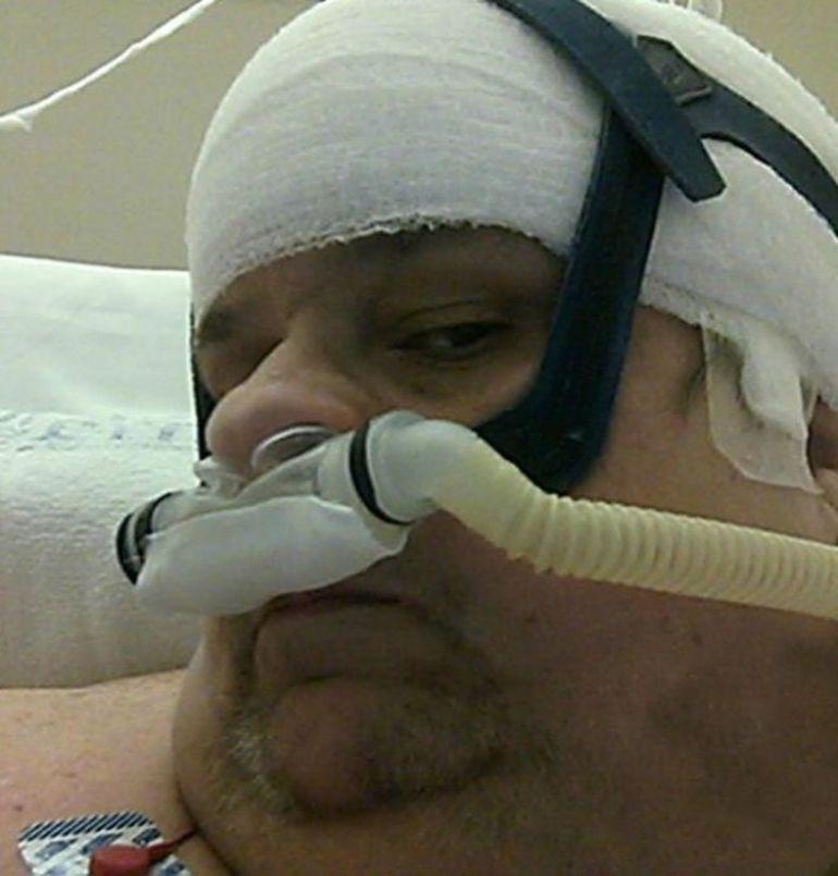 Povestea unui barbat care a reusit sa slabeasca 340 de kg. Afla ce a patit in cele din urma! FOTO