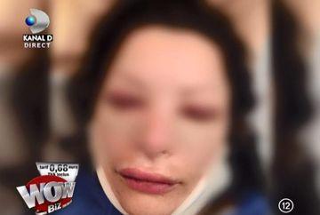 """Brigitte Sfat a scapat de acidul hialuronic din buze! Ilie Nastase: """"O faceam ratusca"""""""