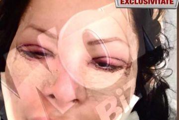 Brigitte Sfat, desfigurata de operatiile estetice! Uite cum arata acum
