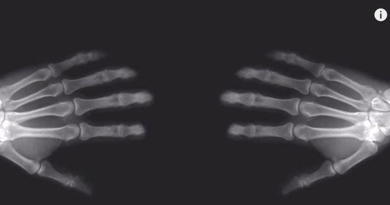 Ce se intampla cand ai artrita