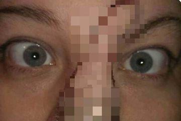 Doctorii i-au inlocuit nasul cu o grefa de piele, deoarece avea cancer. Cum arata femeia cu nasul paros