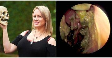 Drama care i-a distrus viata: Actrita careia i-a zburat nasul cand a stranutat, din cauza unei bacterii carnivore