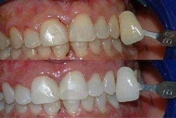 Reteta tibetana pentru dinti albi si sanatosi pana la batranete