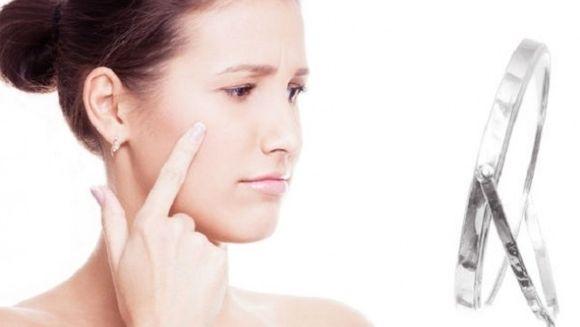 Reteta tratament pentru acnee, pete si semne pe fata! Se poate prepara acasa