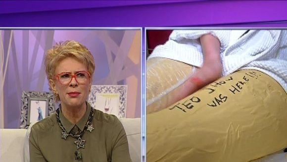 Simona Sensual cu picioarele in ghips! Ce a patit bruneta de a ajuns asa
