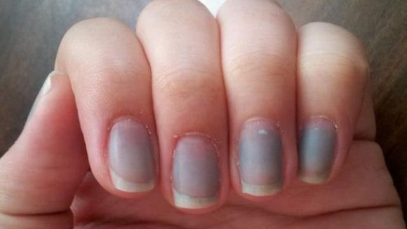 Priveste-ti cu atentie degetele de la maini: unghiile tale au o tenta albastruie? Mergi imediat la doctor! Uite ce inseamna acest lucru