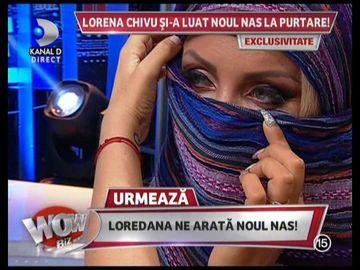 "Imagini incredibile! Cum arata Loredana Chivu dupa operatia la nas ""Ma asteptam sa am un nas de porc!"" - Blonda recunoaste ca a durut-o"