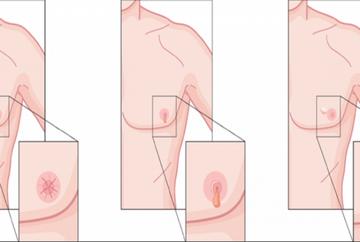OPT simptome pe care barbatii nu trebuie sa le ignore. Ce se intampla daca au dureri in zona sfarcurilor