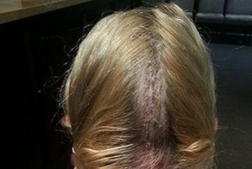 """""""Mi-a cazut creierul din cap!"""" Avea ameteli si nu mai vorbea corect iar doctorii au descoperit ca sufera de o boala rara"""
