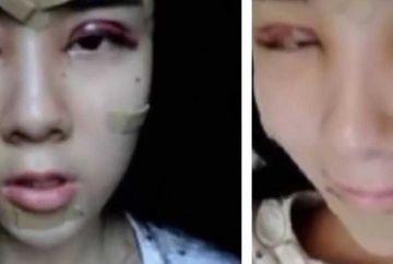 La 15 ani si-a facut operatii estetice la fata sa arate ca o papusa vie si sa o placa iubitul! E incredibil cum arata acum aceasta adolescenta