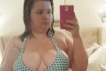 Dupa ce a slabit peste 50 de kilograme, a parasit-o iubitul! Motivul este ireal