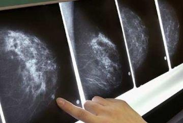 Sase simptome ale cancerului pe care multe femei le ignora