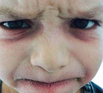 Baietelul ei a ajuns sa arate asa din cauza unei boli care nu il lasa sa doarma! Aproape 6 ani acest copil nu a inchis un ochi! Uite ce avea