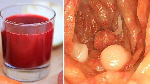 Peste 45.000 de bolnavi de cancer sustin ca s-au vindecat cu bautura asta! Face minuni!