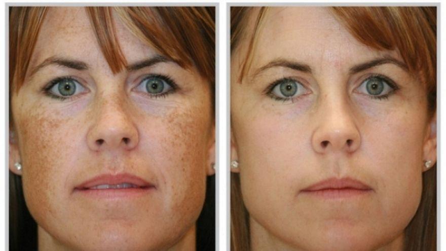 Cinci ingrediente naturale pentru atenuarea petelor pigmentare