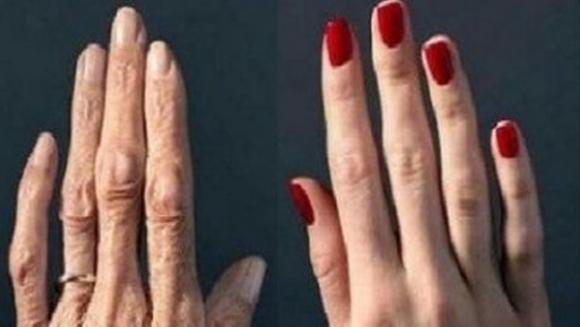 Desi avea 30 de ani, pielea de pe mainile ei arata ca in poza din stanga, de parca ar fi avut 70 de ani. O prietena i-a spus sa incerce un truc simplu, iar dupa o luna rezultatul a fost incredibil: mainile ei aratau ca in poza din dreapta!
