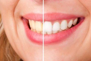 Cum sa ne albim dintii cu apa oxigenata? Iata un truc simplu